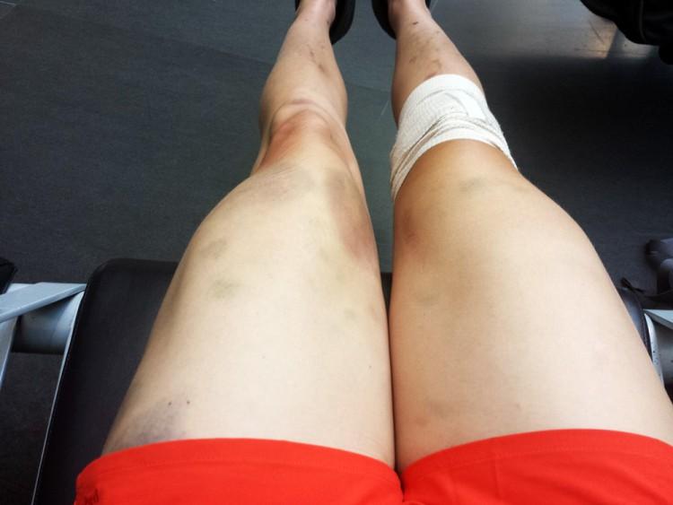 Legs post suck